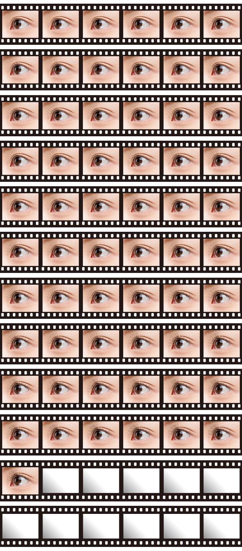 openeyes-2_944-2000